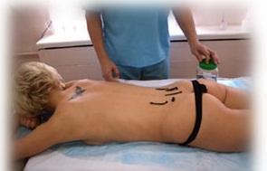 Гирудотерапия при целлюлите фото