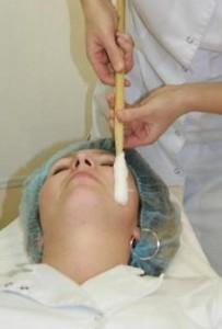 криотерапия лица фото